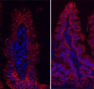 Members of the gastrointestinal microbiota can modulate barrier function, which can have important implications in many immune diseases like asthma. EpCAM localization (red) is disrupted in mice colonized with a dysbiotic microbial community (left) compared to healthy control mice.
