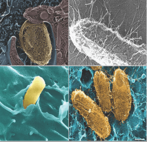 Uropathogenic E. coli produce adhesive pili fibers on their surface (upper right) which allow them to bind to (upper left and lower right) and invade into (upper and lower left) bladder epithelial cells.
