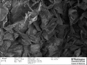 Scanning electron microscopy of exfoliating mouse vaginal epithelium.